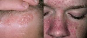 Как лечить себорейный дерматит на лице в домашних условиях: причины появления и особенности патологии, эффективные традиционные и альтернативные методы терапии, рекомендации дерматологв