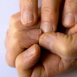 Как лечить онихолизис на ногах в домашних условиях: аптечные и народные средства, меры профилактики