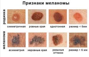 Меланома: причины и разновидности патологии, клинические проявления, диагностика и методы устранения