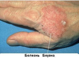 Болезнь Боуэна: что это такое, основные симптомы и схема лечения заболевания, последствия и осложнения