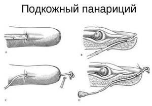 Панариций пальца на руке: причины и симптомы заболевания, лечение препаратами и народными способами