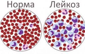 Норма лейкоцитов в крови у детей: уровень содержания, нюансы исследований, подготовка и процесс проведения анализа
