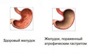 Симптомы гастрита с повышенной кислотностью: характерные признаки и разновидности заболевания, меры профилактики и терапии