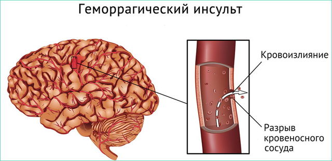 Геморрагический инсульт: отличительные особенности и разновидности патологии, причины возникновения и характерные признаки развития заболевания, методы лечения и реабилитации, прогноз для жизни