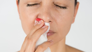 Причины, первая помощь и лечение носового кровотечения