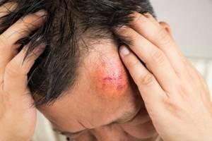 Лечение: травм, ранений, ожогов и растяжений в домашних условиях