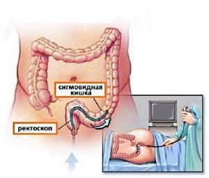 Полипы в кишечнике: происхождение и классификация новообразований, характерные проявления, способы лечения и особенности диеты