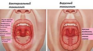 Симптомы и лечение тонзиллита у взрослых и детей