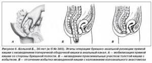 Болезнь Гиршпрунга: формы и причины возникновения, симптомы заболевания, диагностика и лечение болезни