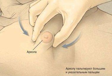 Гинекомастия у мужчин: что это такое и основные симптомы болезни, последствия и осложнения, современные методы лечения и профилактики заболевания