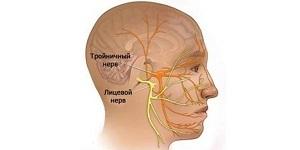 Как лечить невралгию тройничного нерва в домашних условиях: фитотерапевтические способы, аптечные и народные средства