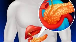 Панкреатит: причины возникновения патологии, виды воспаления и их характеристики, лечение в домашних условиях медикаментами и народными средствами, правила питания и образ жизни для предотвращения рецидивов