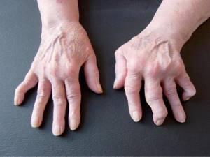 Ревматоидный артрит пальцев рук: клинические симптомы, методы диагностики и специфика течения заболевания, традиционные и народные методы лечения патологии