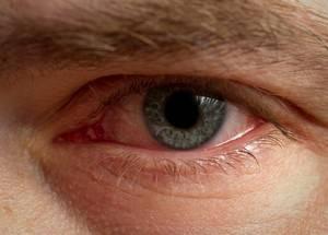 Блефарит: что это такое, симптомы ит признаки развития заболевания, лечениеу взрослых и прогноз