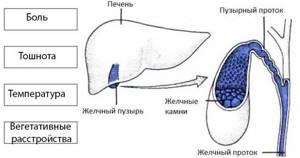 Желчнокаменная болезнь: симптомы и лечение