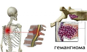 Что такое гемангиома позвоночника: причины образования опухоли и методы диагностики, особенности лечения и возможные осложнения, прогноз для жизни