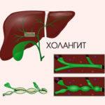 Холангит: симптомы и причины возникновения болезни, механизм развития патологии, инструментальные методы исследования и лабораторные анализы, лечение препаратами и профилактики заболевания, прогноз для жизни