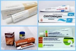 Фурункулез: лечение, профилактика, возможные осложнения
