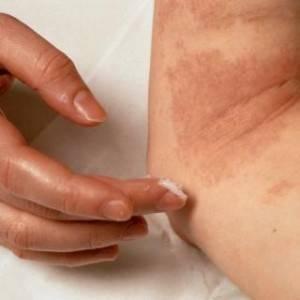 Нейродермит: внешние и внутренние причины развития, особенности заболевания, народные и аптечные средства лечения