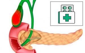 Дискинезия желчевыводящих путей: причины и симптомы заболевания, методы лечения и профилактики у взрослых, советы врачей