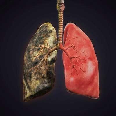 Как лечить бронхит курильщика: причины появления и симптомы, медикаментозные методы терапии и применение народных рецептов, советы специалистов