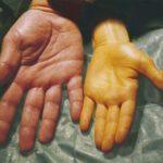 Причины и лечение желтухи