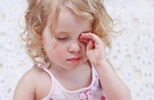 Аллергический конъюнктивит у взрослых: причины и основные симптомы заболевания, общие принципы лечения и советы врачей