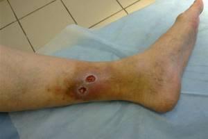 Трофическая язва на ноге в начальной стадии: причины возникновения, характерные проявления, меры диагностики и способы лечения
