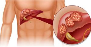 Полип в желчном пузыре: виды и причины возникновения, способы лечения и особенности питания