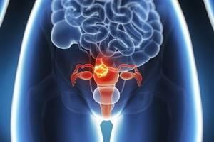 Первые признаки миомы матки: провоцирующие факторы, сопутствующие симптомы, способы лечения и профилактические меры