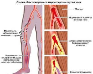 Облитерирующий атеросклероз сосудов нижних конечностей: причины болезни, характерные признаки, методы лечения