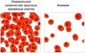 Балантидиаз: причины и пути заражения, формы патологии и методы диагностики, лечение заболевания антибиотиками и медикаментозными препаратами, меры профилактики