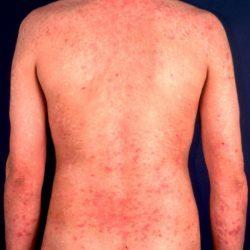 Лечение аллергического дерматита у взрослых: описание и причины появления заболевания, характерные симптомы и правила профилактики, разновидности патологии и рекомендации по питанию