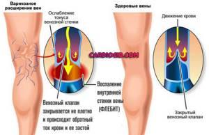 Анемия: причины развития, сопутствующие симптомы, диагностика и особенности лечения