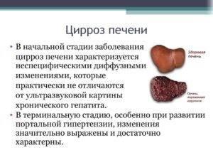 Цирроз печени: причины возникновения, стадии развития, методы диагностики и лечения
