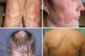 Отрубевидный лишай у человека: причины появления, сопутствующие симптомы, эффективные способы лечения