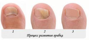 Чем лечить грибок ногтей на ногах в домашних условиях: действенные лекарственные препараты и народные средства, советы врачей
