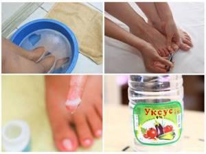 Список мазей от грибка ногтей на ногах: обзор дешевых действенных лекарств и схема лечения заболевания, побочные действия и показания к применению