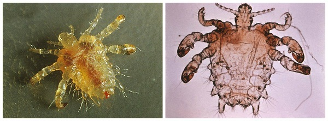 Что такое педикулез: разновидности патологии, способы передачи и характерные симптомы, обзор инсектицидов для борьбы со вшами, действенные меры профилактики