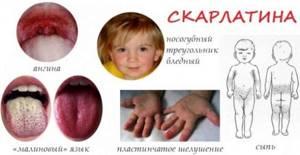 Скарлатина у детей: причины, симптомы и лечение