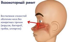 Что такое вазомоторный ринит - симптомы и первые признаки болезни, лечение препаратами и физиотерапией