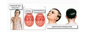 Инфекционный мононуклеоз: факторы риска, клинические проявления, методы лечения и возможные осложнения