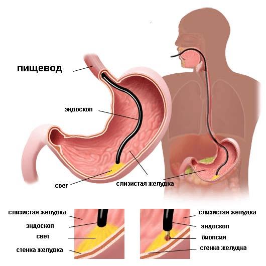 Бульбит: общая информация о болезни, причины развития и разновидности заболевания, медикаментозная терапия и применение народных средств