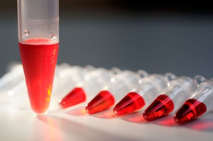 Как проявляется хламидиоз у мужчин: пути заражения и факторы риска, методы диагностики, клинические симптомы и лечение заболевания, возможные осложнения