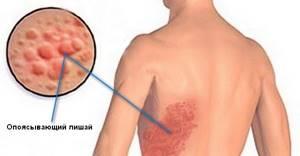 Опоясывающий герпес: причины развития заболевания и схема лечения медикаментами и народными средствами, уход за кожными высыпаниями