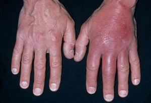 Особенности флегмоны: причины развития воспаления, характерные проявления и способы лечения