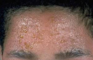 Экзема: внешний вид, причины, профилкатика, лечение