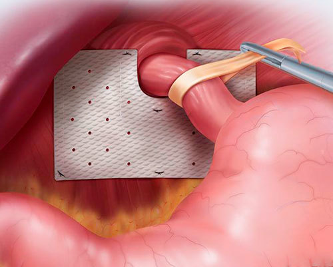 Грыжа пищевода: симптомы и признаки развития заболевания, проведение профилактических и лечебных мероприятий