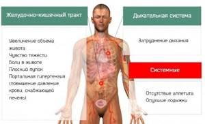 Асцит брюшной полости: причины возникновения и стадии развития патологии, симптомы заболевания и варианты лечения, прогноз для жизни