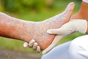 Тромбофлебит вен нижних конечностей: причины возникновения, клиническая картина и осложнения, способы лечения
